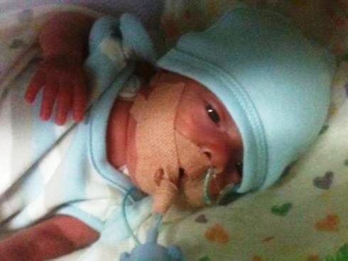 Рожденный ребенок в 26 недель беременности